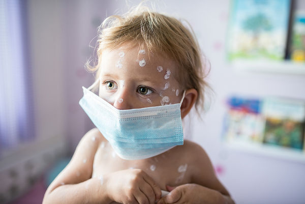 girl with chicken pox in quarantine