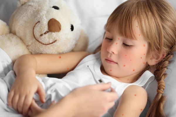 measuring temperature of girl with chicken pox